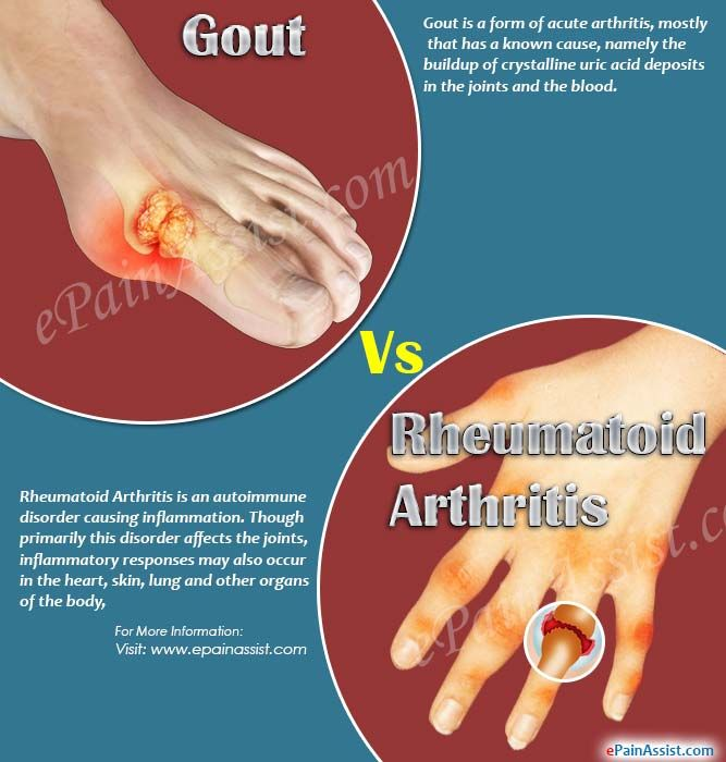 Diet to CURE gout: Eat high-fibre food to ease symptoms of THIS form of arthritis