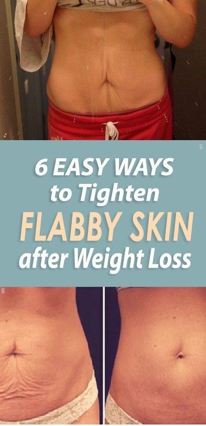 Tummy Skin Tightening Cream : tummy, tightening, cream, Pounds, Weeks, 18aims, Flabby, Stomach,, Tighten, Tightening, Stomach