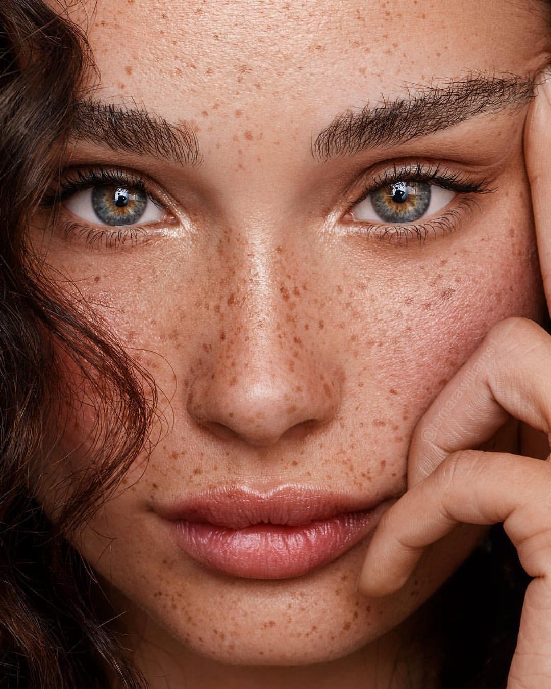 сложно материал фото можно ли убрать веснушки на лице вас есть