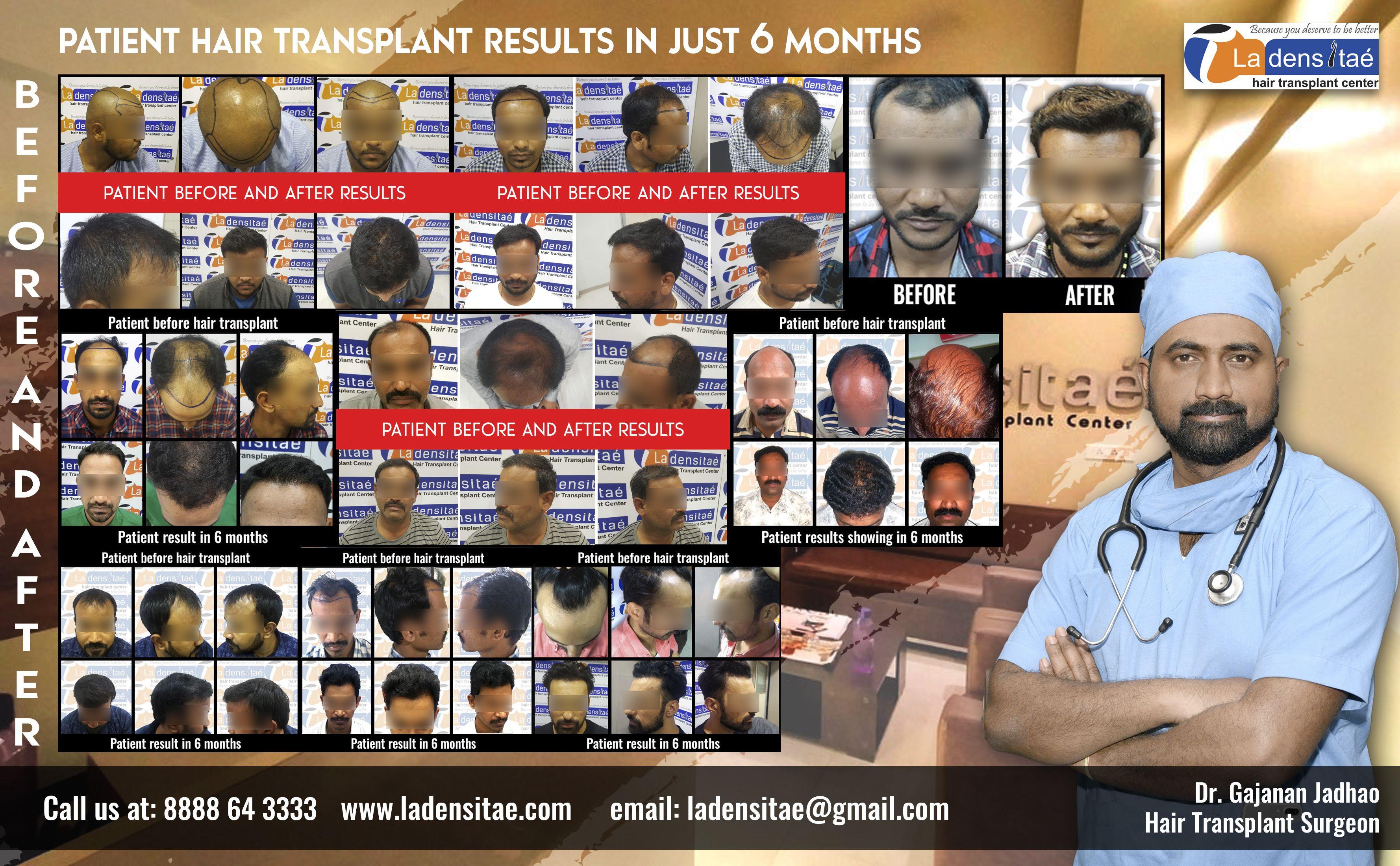 Best hair transplant results at la densitae hair transplant clinic Gallery