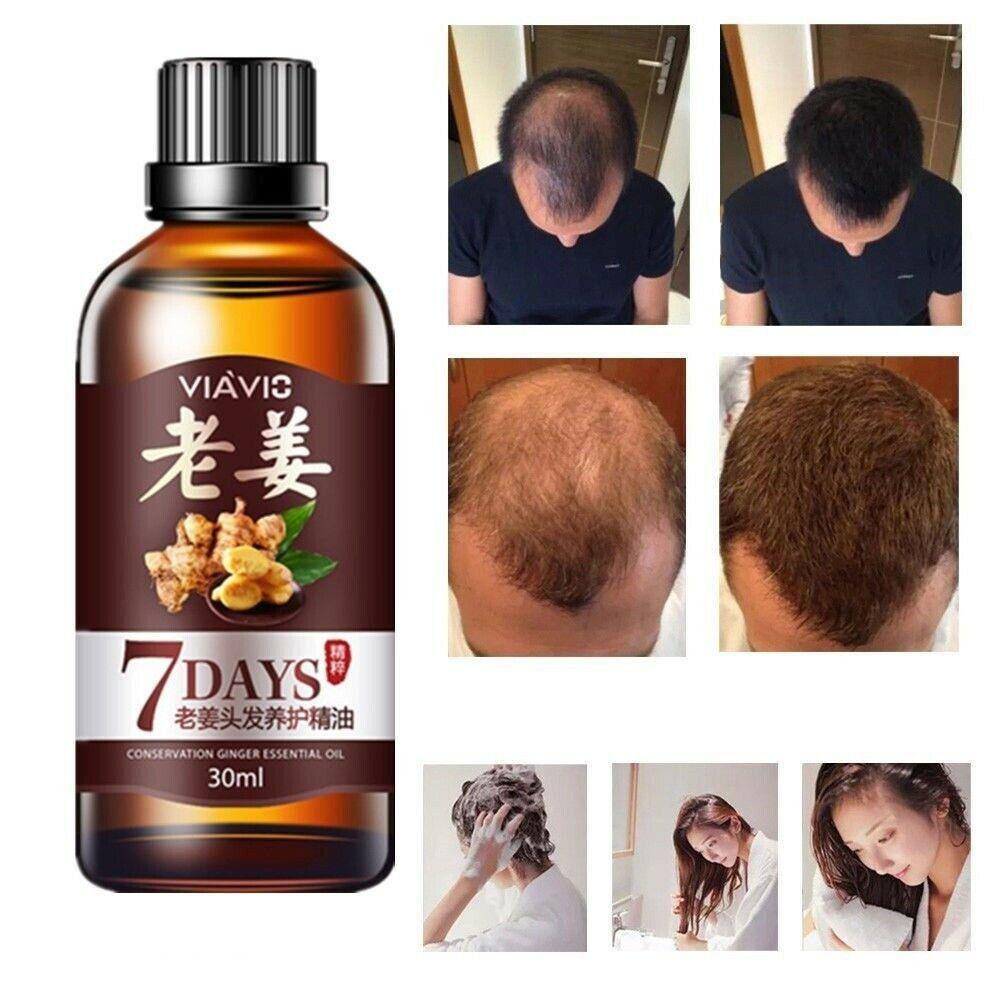 3Packs Hair Regrow 7 Day Ginger Germinal Serum Ess