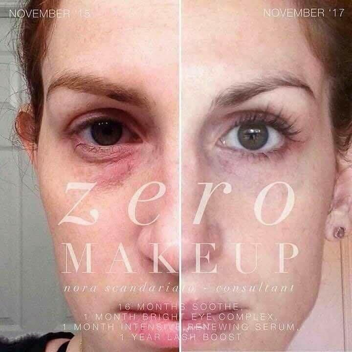 Tired Eyes Dark Circles Wimpy Looking Lashes Dull Skin Dry Skin Rodan And Fields Treating Oily Skin Professional Skin Care Products
