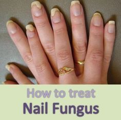 Home Remedies for Toenail Fungus | Nails&Pedi\'s | Fingernail fungus ...