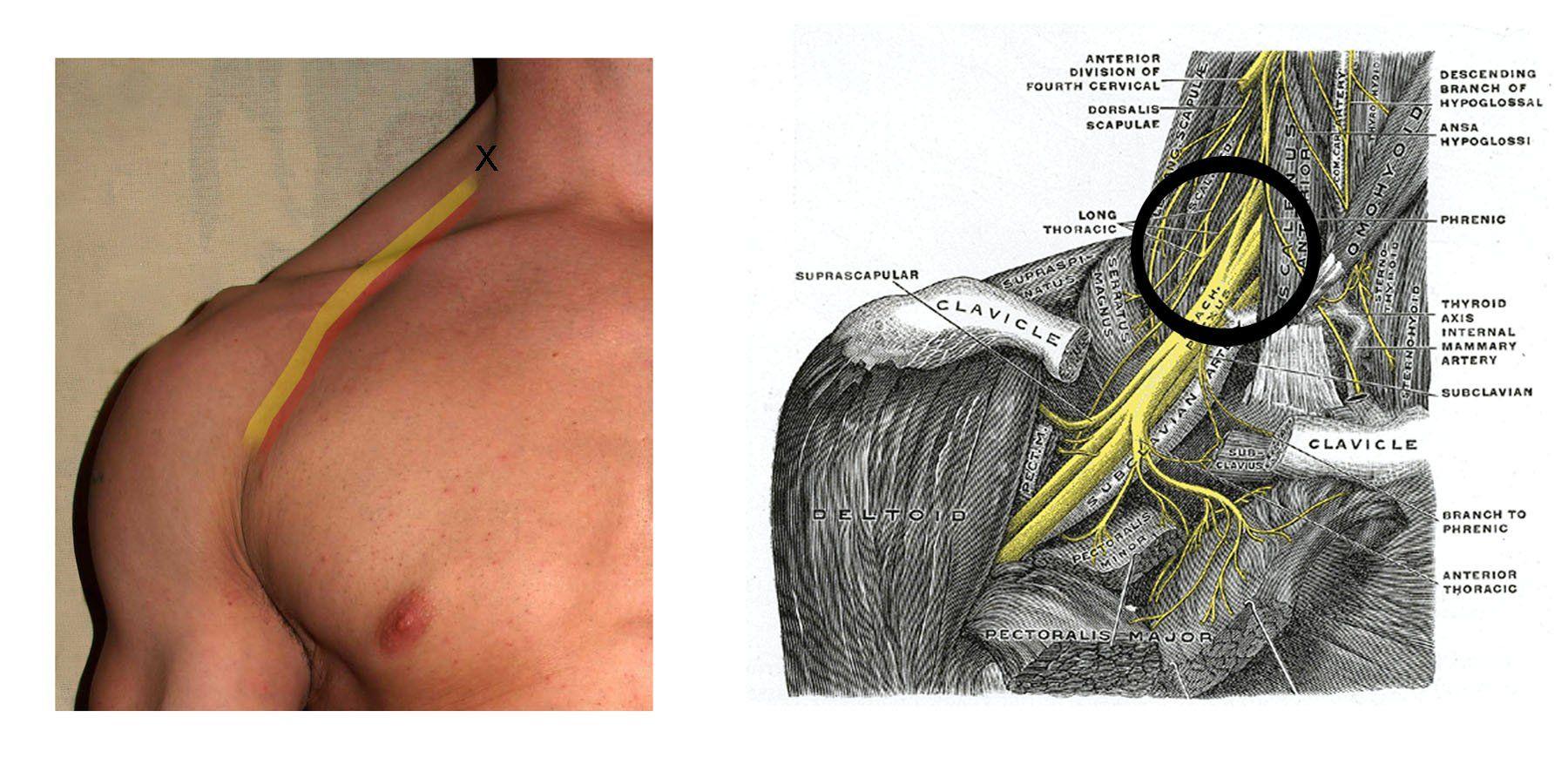 Interscalene Block: Nerve Block for Shoulder Surgery   Med Stuff ...