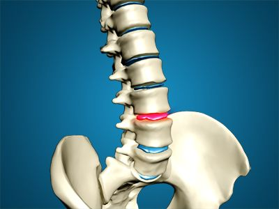 The two most common problems that may occur with a lumbar disc are bulging disc and degenerative disc disease...read: http://painassist.com/lumbar-disk-pain