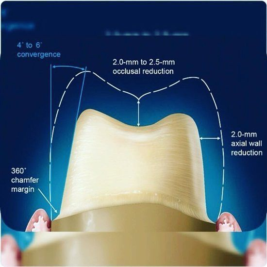 Dental Restoration Prep Dental Restorative Prep Odontología
