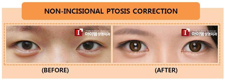 Korean Plastic Surgery/Korean Cosmetic Surgery/Eye Surgery