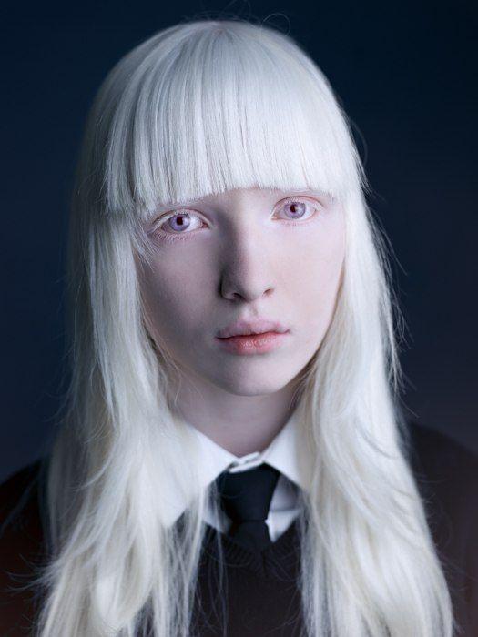 June Johnson About My Life So Far Albino Model Albino Girl