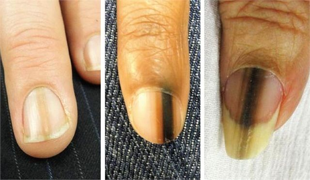Pin On Cosmetology Nail Theory