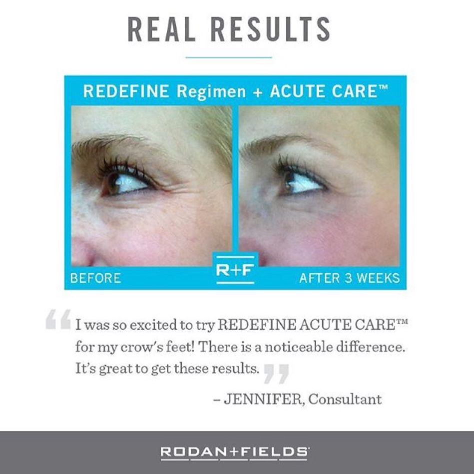 Maybe you LIKE your crow's feet? Maybe not. If it's NOT--send me a message for the alternative. CROW'S FEET BE GONE!