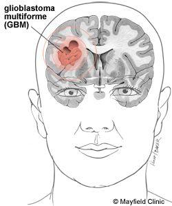 parietal lobe glioblastoma - Google Search | Medical
