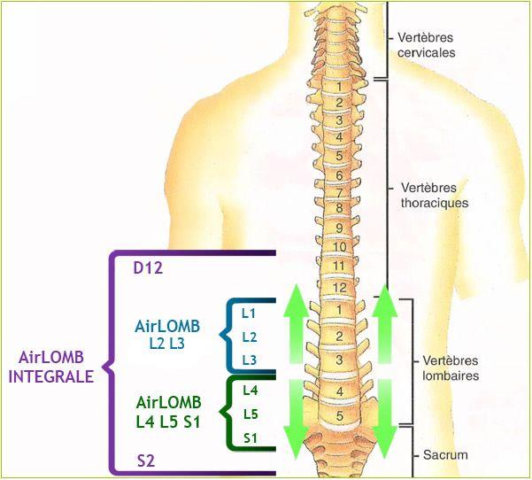 Deplasare vertebre fara operatie la hernie disc