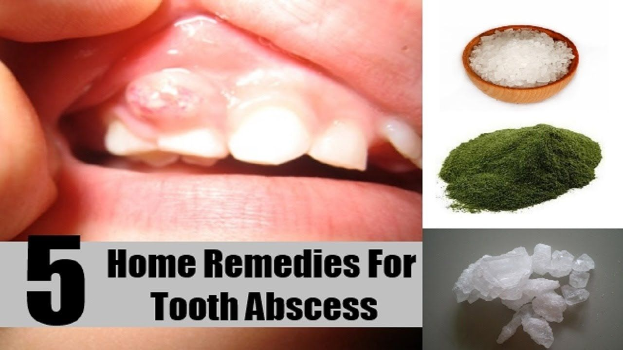 Home remedies for abscessed tooth home remedies