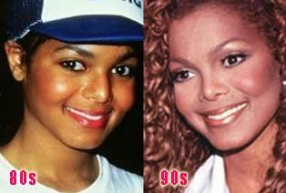 Janet Jackson Plastic Surgery Before After Janet Jackson Plastic