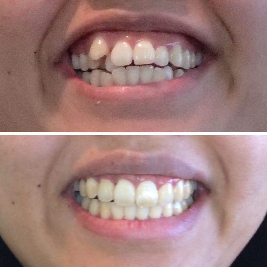 Invisalign Retainers Really Do Work In 2020 Invisalign