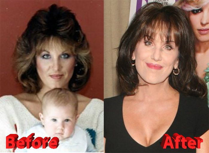 Robin Mcgraw Plastic Surgery Robin Mcgraw Plastic Surgery Plastic Surgery Celebrity Plastic Surgery