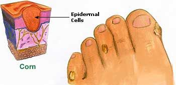 how to get rid of thick dry skin on toes