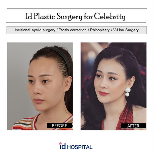 Phuong Is A Actress And Model Well Known In Vietnam She Had Her Plastic Surgery In Id Plastic Surgery Vietnam Celebrityplasticsurgery Asian Asianrhino