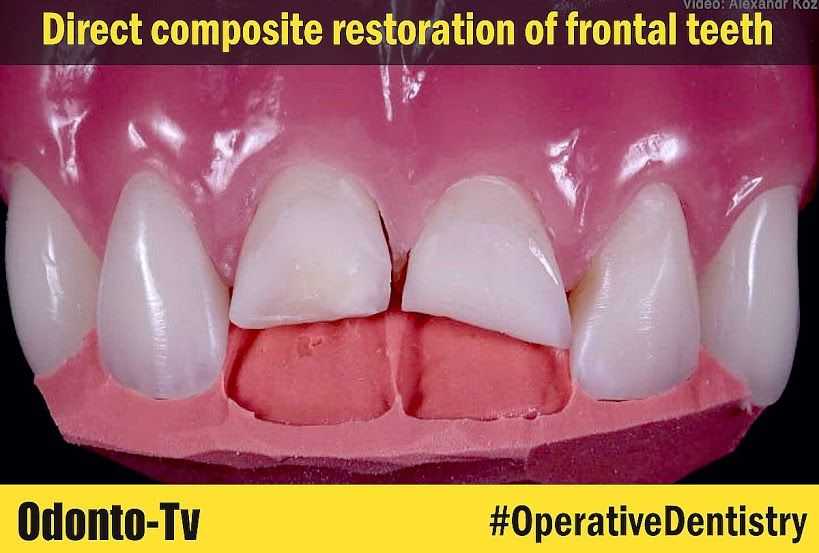 OPERATIVE DENTISTRY Direct composite restoration of frontal teeth