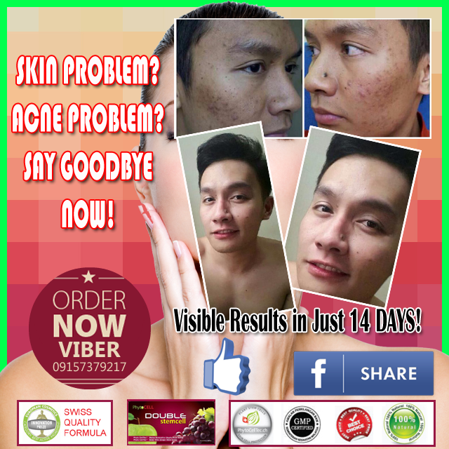 2013 Best Selling Double Stem Cell Product in Malaysia and Thailand Now in the Philippines! See Visible Results in Just 14 Days! PHYTOSCIENCE DOUBLE STEM CELL removes the appearance of age lines and restore smooth, radiant, youthful looking skin! Click Here to ORDER PhytoScience Double Stem Cell Therapy bit.ly/1Abpe0n. Are you interested to Become Double Stem Cell Mobile Stockist and Distributors? Contact US ASAP.