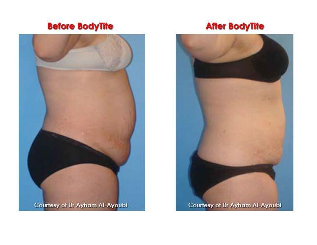 BodyTite-rasvaimun avulla poistetaan rasvaa ja ...