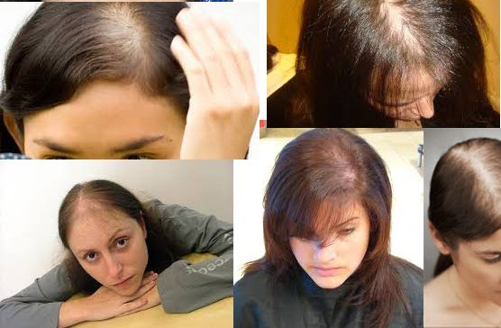 PRP, the only permanent Hair Loss Solution #hairloss #hairfall