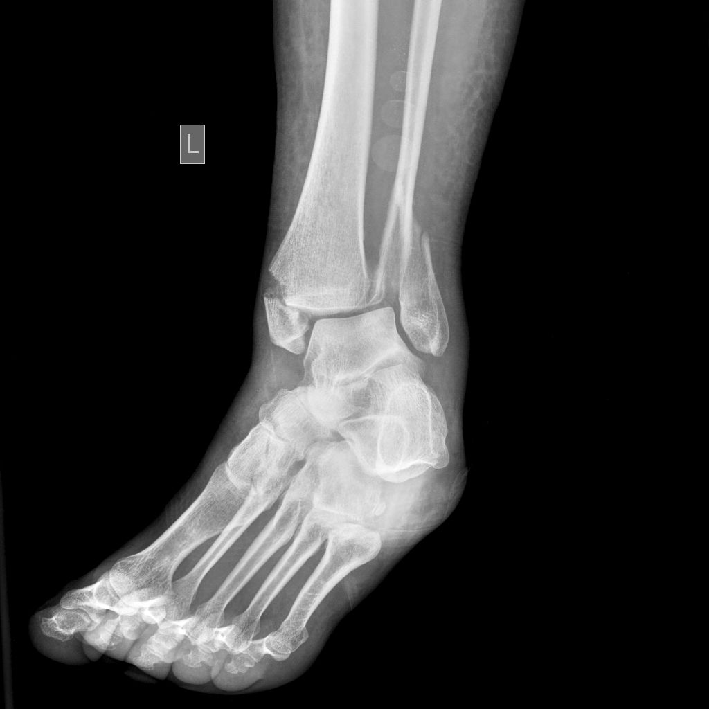 Lateral malleolus fractures are the most common type of ankle ...