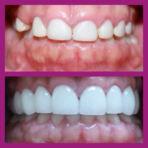 #transformationthursday call us to see what we can do for you! 760)480-1750 #smiles #beforeandafter #beauty