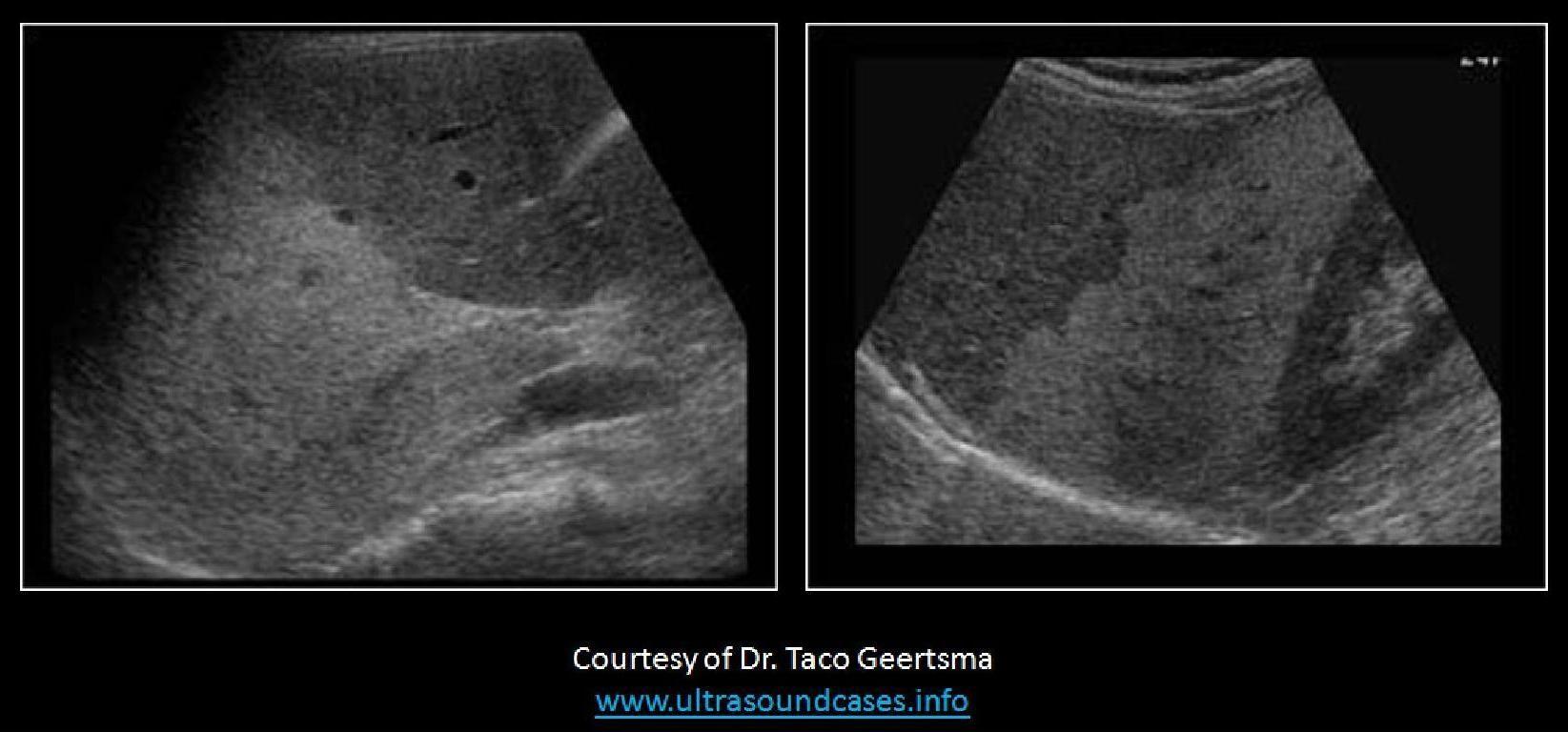 WK 2 LIVER PATHOLOGY Fatty infiltration | Ultrasound | Pinterest ...