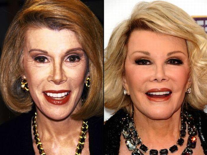 Celebrity Plastic Surgery Before - 65.5KB