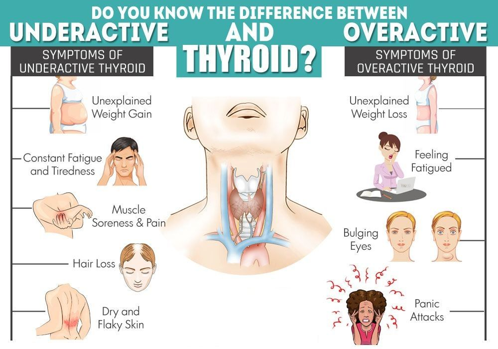Best Laboratory Collection Centre Thyroid Symptoms Thyroid