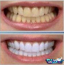 5 Receitas Caseiras Para Clarear Seus Dentes Funciona Mesmo