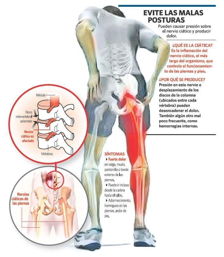 Lo que todo el mundo debería conocer sobre la ciática... | anatomia ...