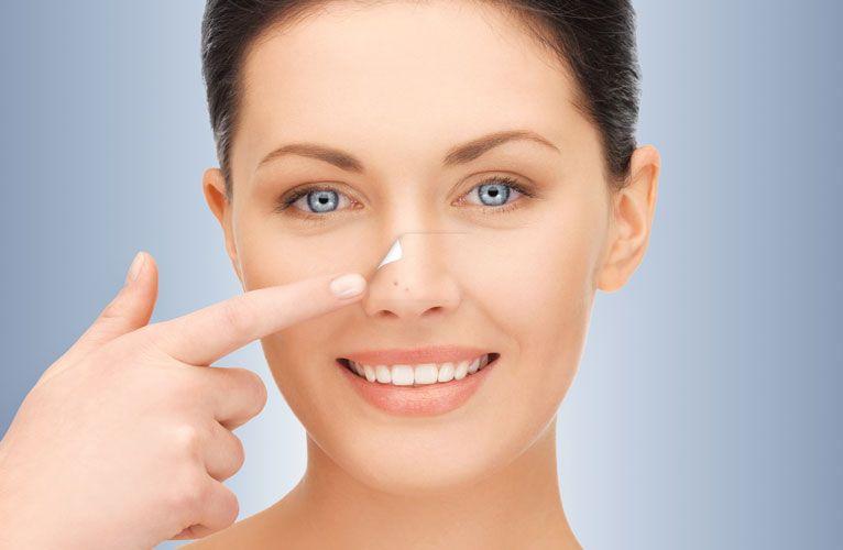 Bagaimana Cara Menghilangkan Jerawat Di Dalam Hidung