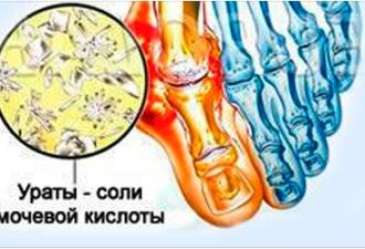 Мантра от боли в суставах аппарат тазобедренный сустав свош