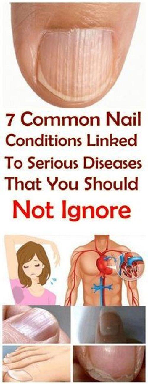 nail conditions should not to ignore, nail diseases chart, nail ...