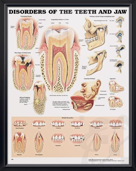 Disorders Of The Teeth And Jaw Chart 20x26 Health And Medical