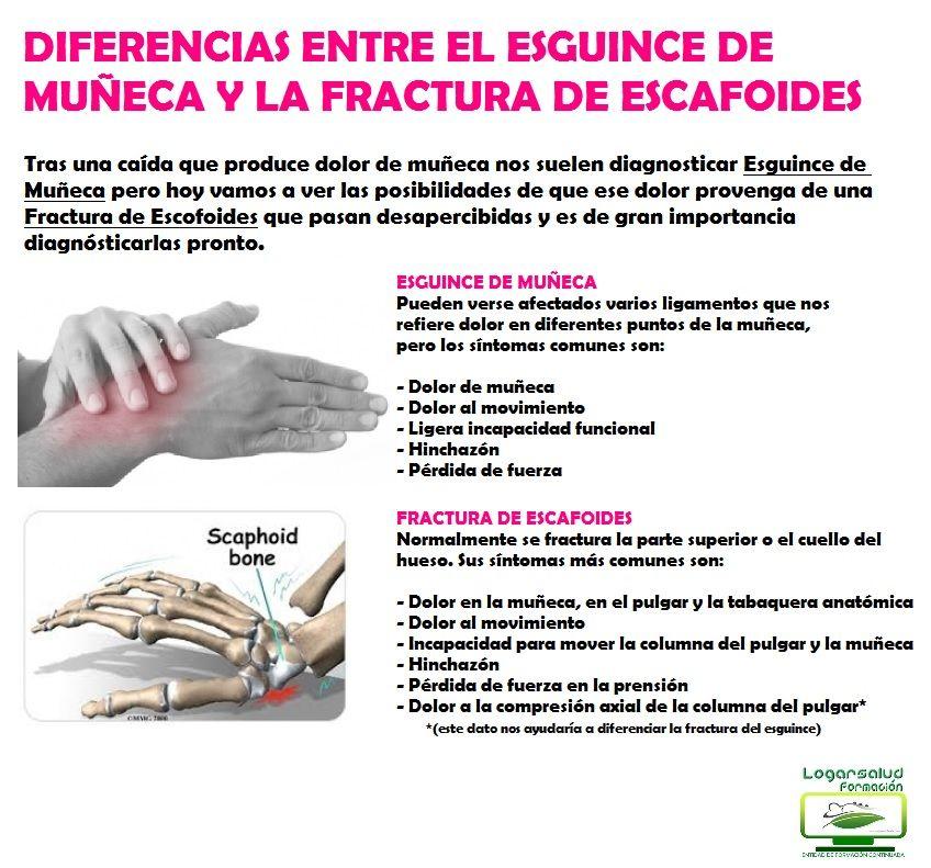 Diferencias Entre Esguince De Muñeca Y Fractura De Escafoides Fisioterapia Salud Fractura Rehabilitación Http Www Physical Therapy Physiotherapy Therapy