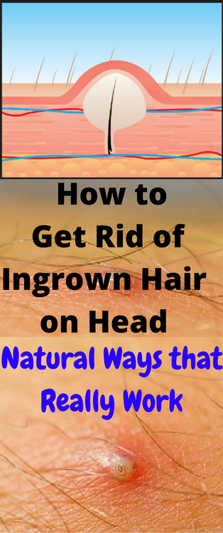 87032494c0b5d0a119b88434933961d5 - How To Get Rid Of Red Spots On Scalp