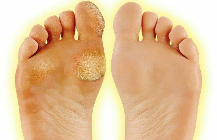 hard yellow skin on feet