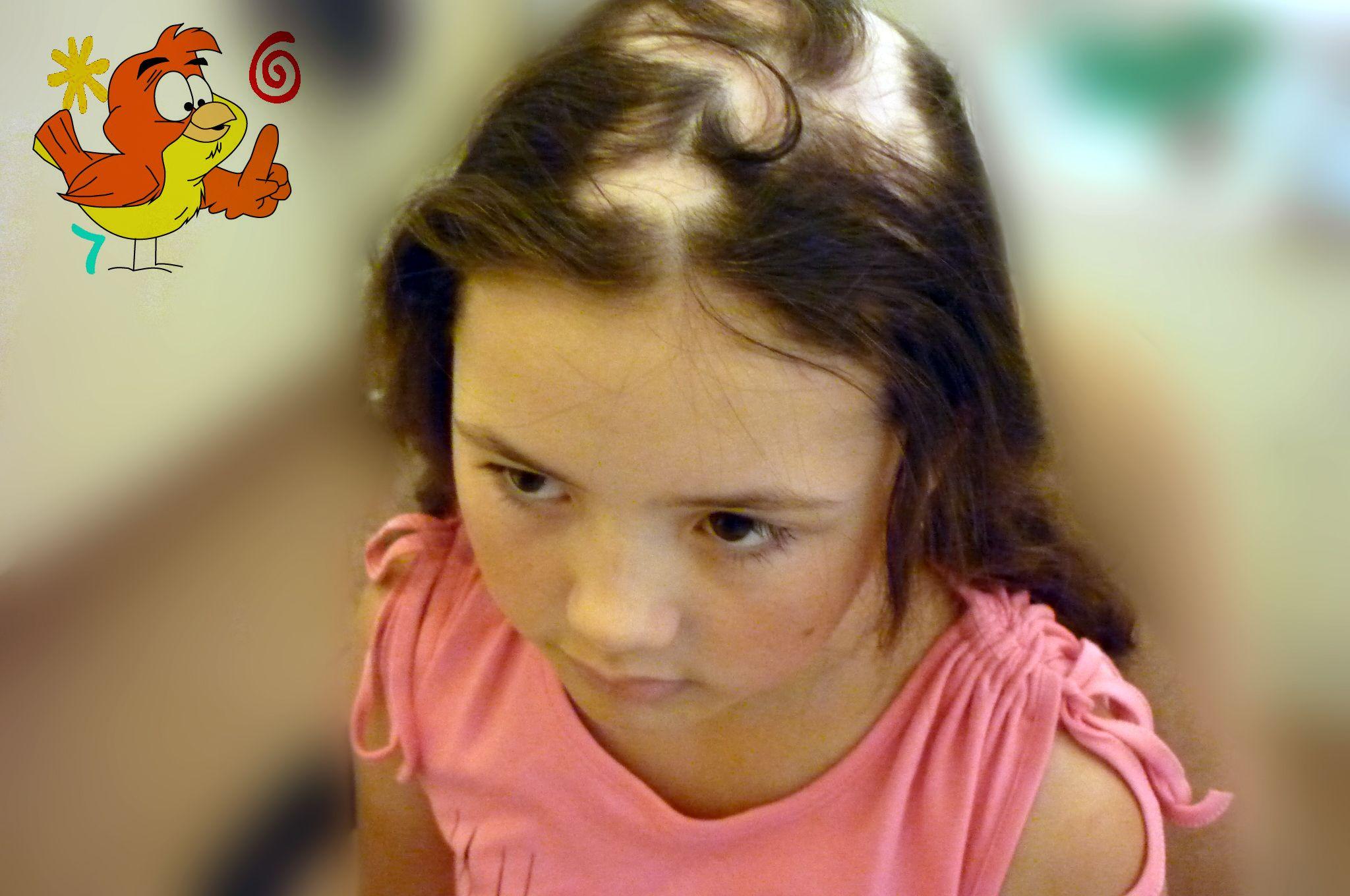 Pin on Children Hair Loss, Alopecia Areata, Alopecia ...