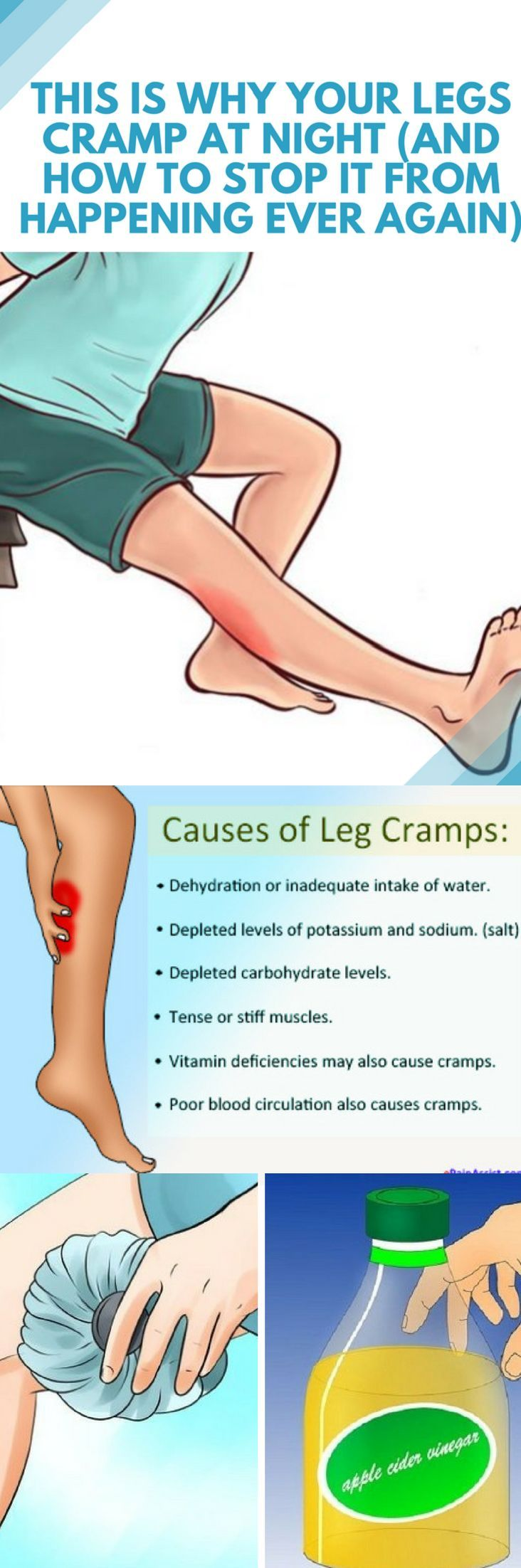 This is Why Your Legs Cramp at Night And How to Stop it ...