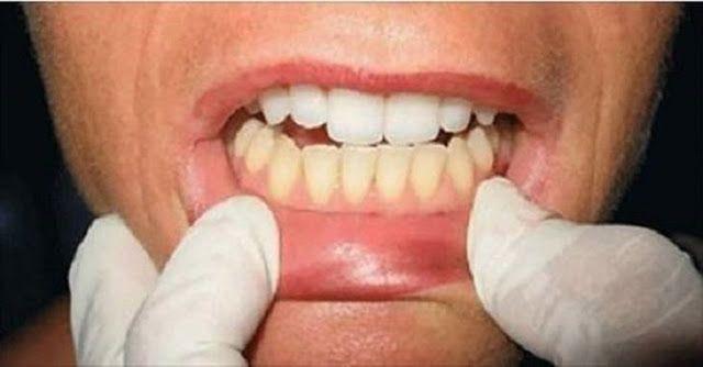 Este E O Melhor E Mais Barato Clareamento Dental Caseiro Cura Pela