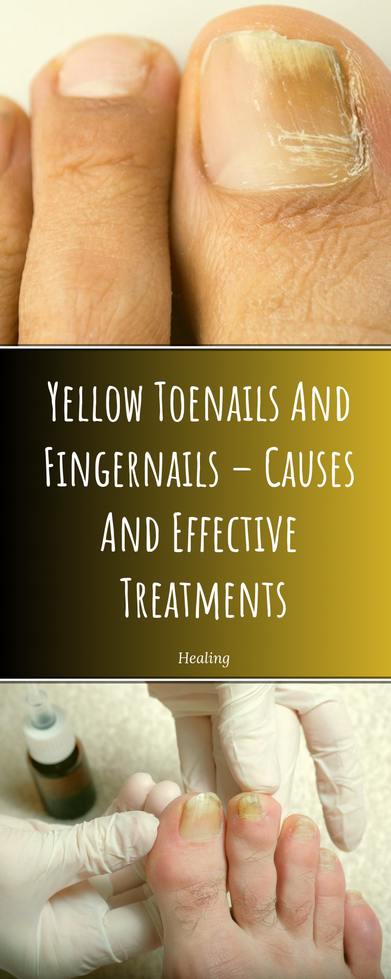 Yellow Toenails And Fingernails – Causes And Effective Treatments ...