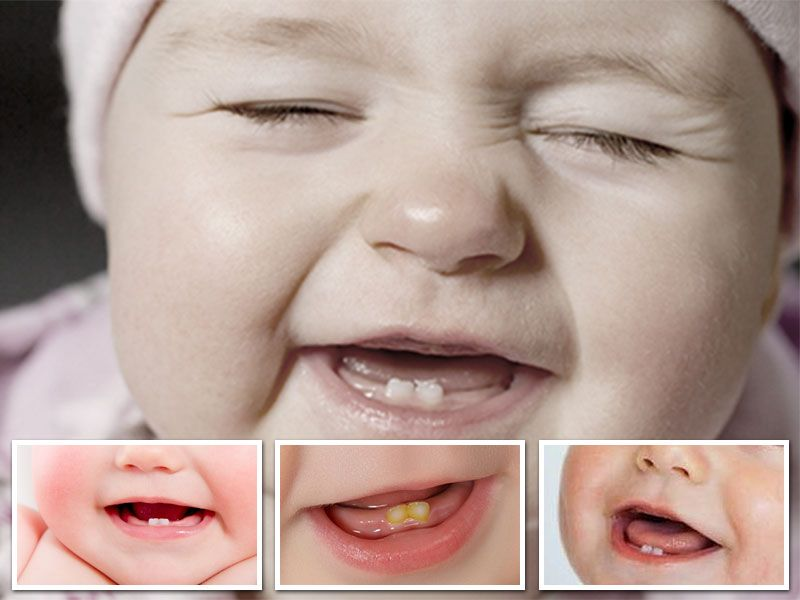 Parents are worried when baby teething starts. All 20 baby teeth they are  term as primary one which are in baby mouth, when the child is 2 to 3 years  old.
