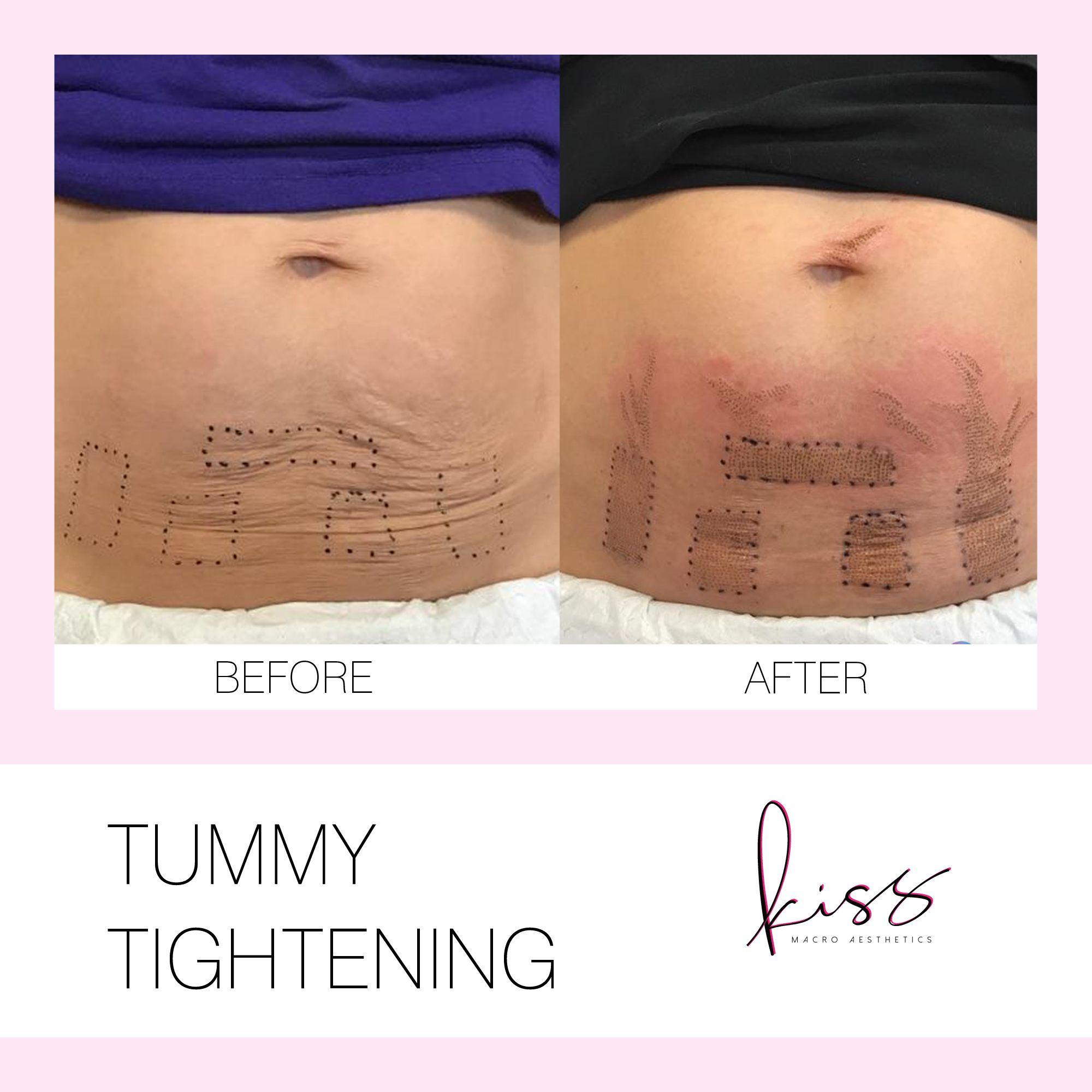 Plasma Lift Fibroblast Toronto Skin Tightening Tummy Skin Tightening Face Skin Tightening Stomach