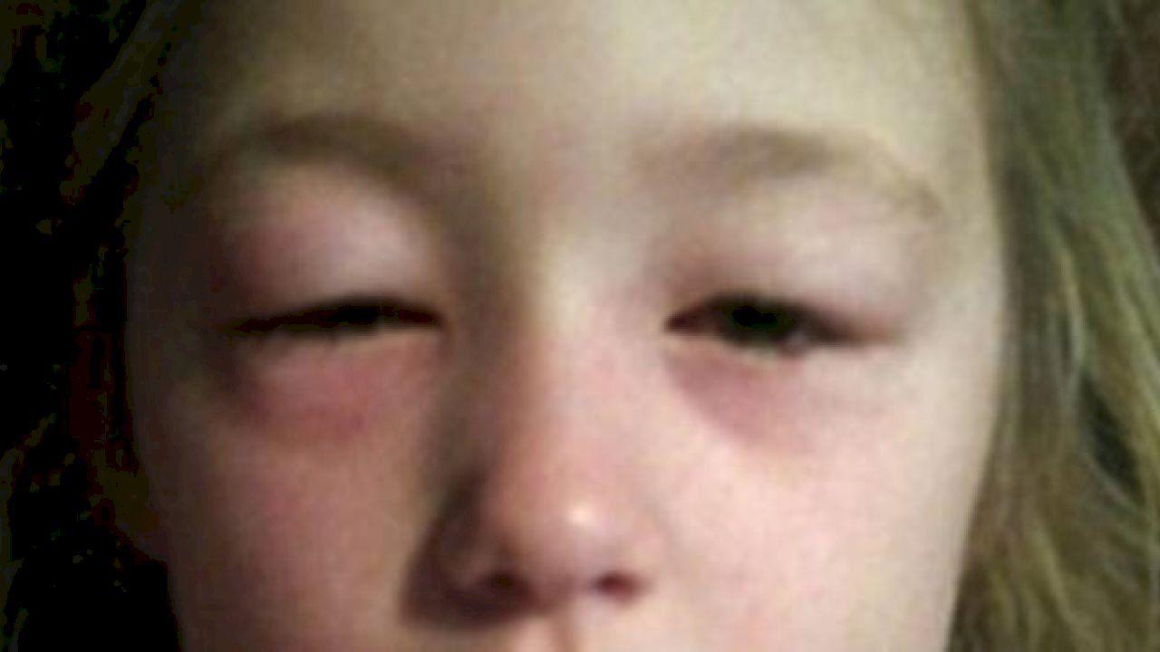 كيفية علاج تورم العين Eyes