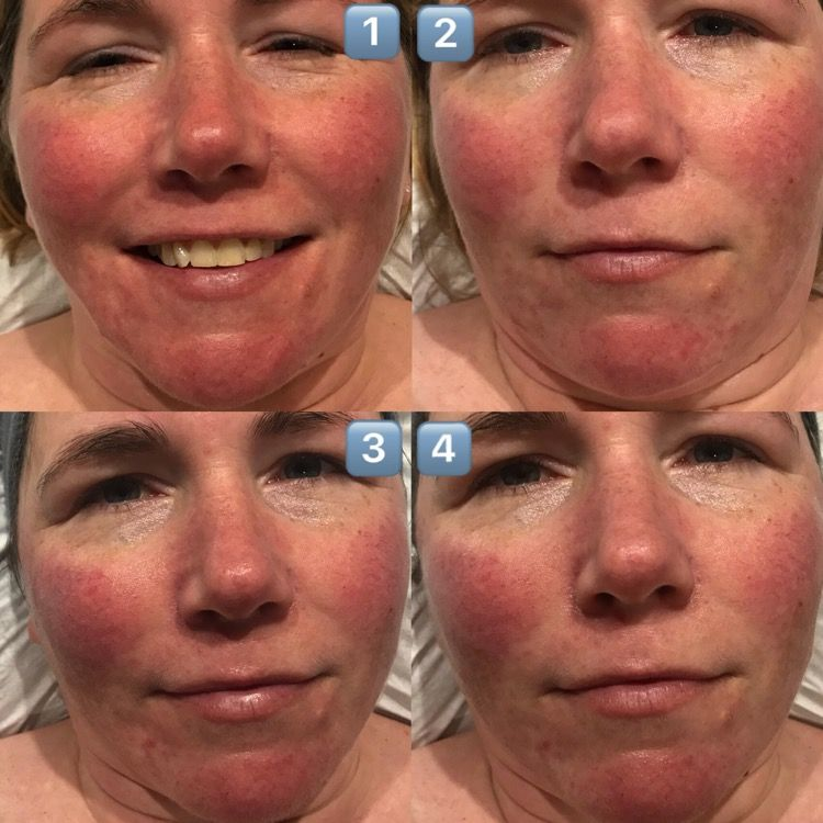 Treating my Rosacea with an IPL Skin Rejuvenation Course ...