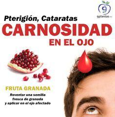 Ojos Cataratas Carnosidad Remedio Para Hongos Gotas Para Los