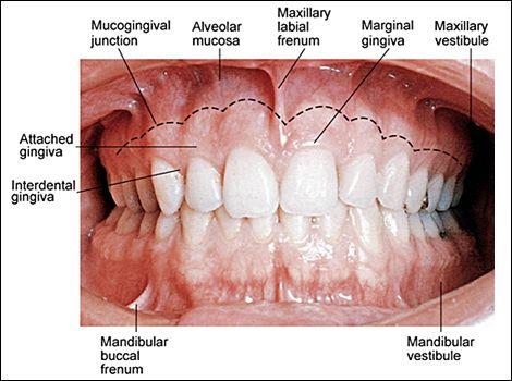 fig05.jpg (470×350) | medical illustration | Pinterest | Dental